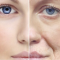 Tutto sulla biorivitalizzazione viso