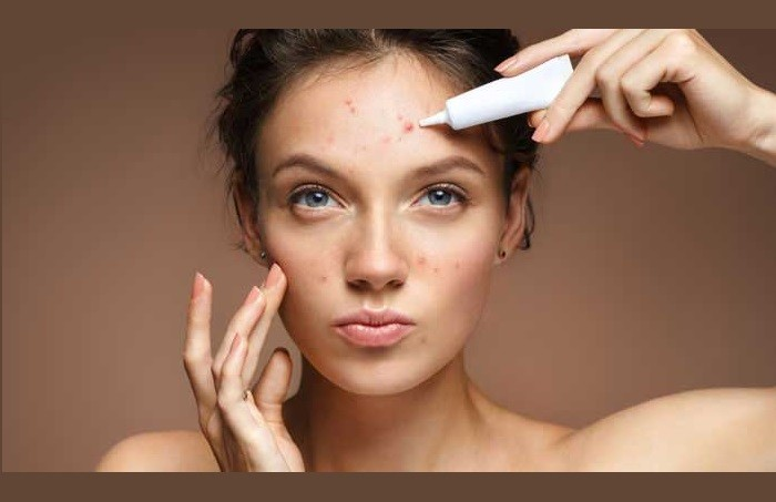 Trattamento acne giovanile e dell'adulto: cure e strategie